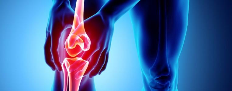 Факторы риска остеоартроза
