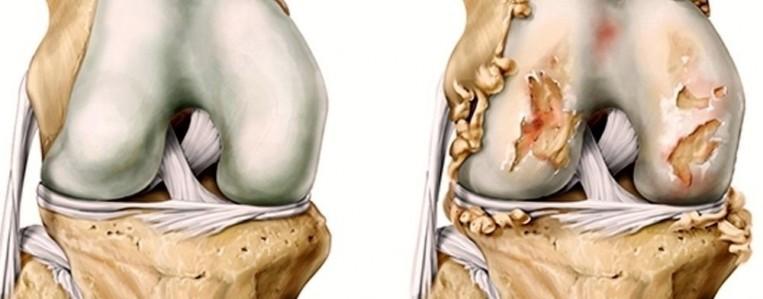 Как предотвратить остеоартроз
