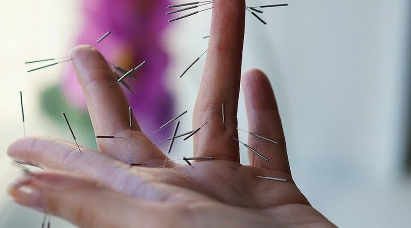 Рефлексотерапия при проблемах с суставами